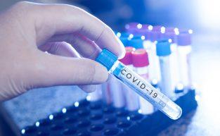 O que deve fazer um trabalhador que pegou coronavírus no trabalho?
